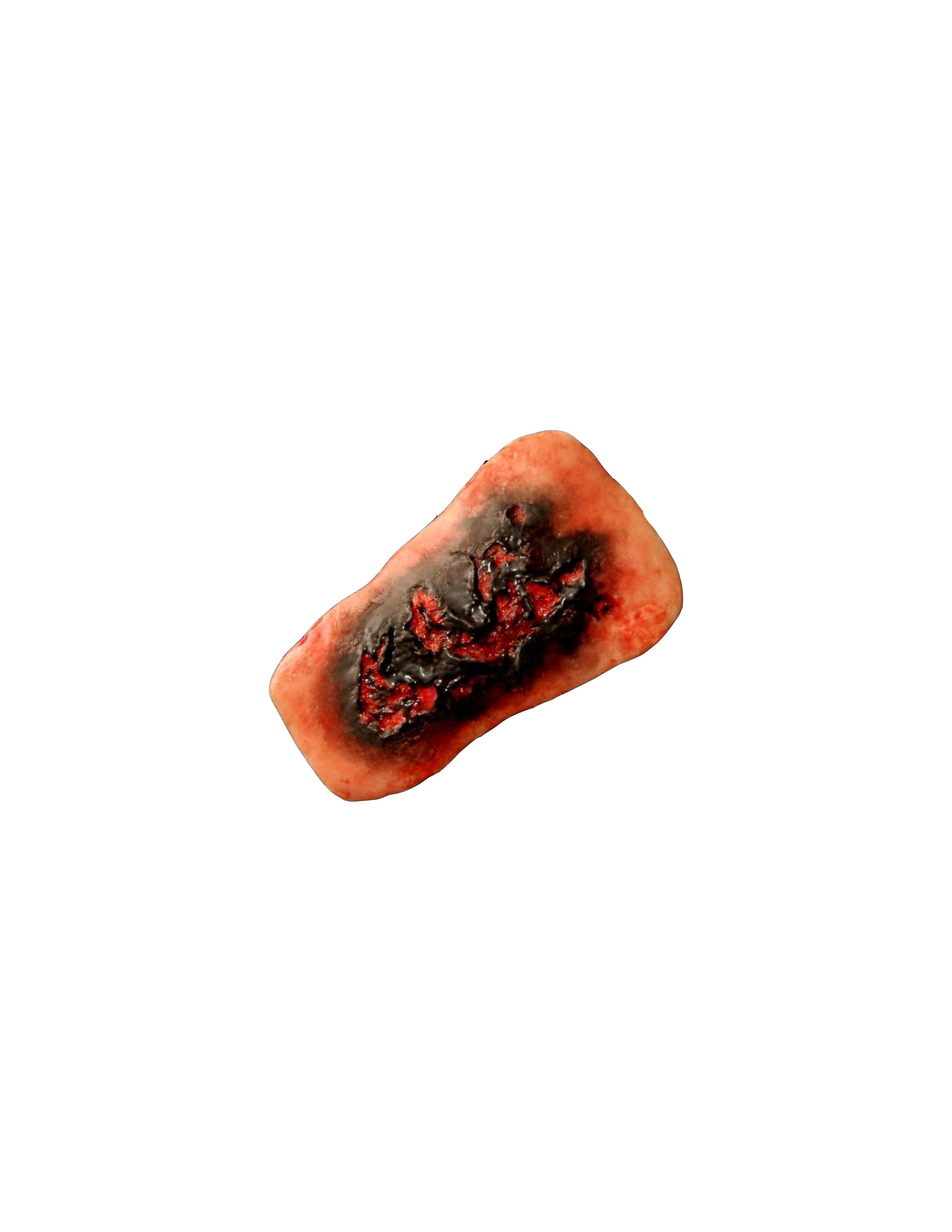 Third Degree Burn (4.5″x7.5″)