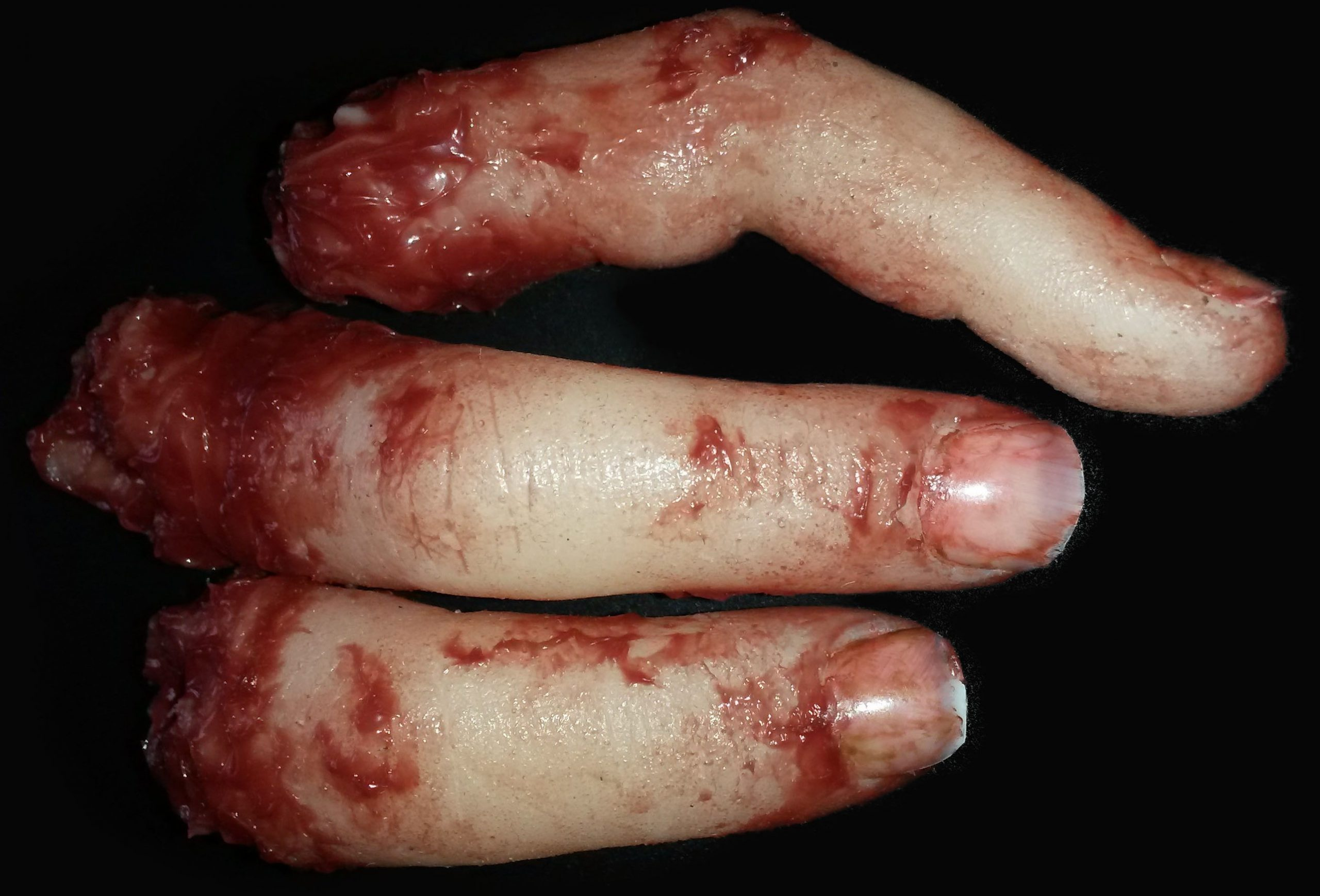 Finger (Specific digits may be requested)